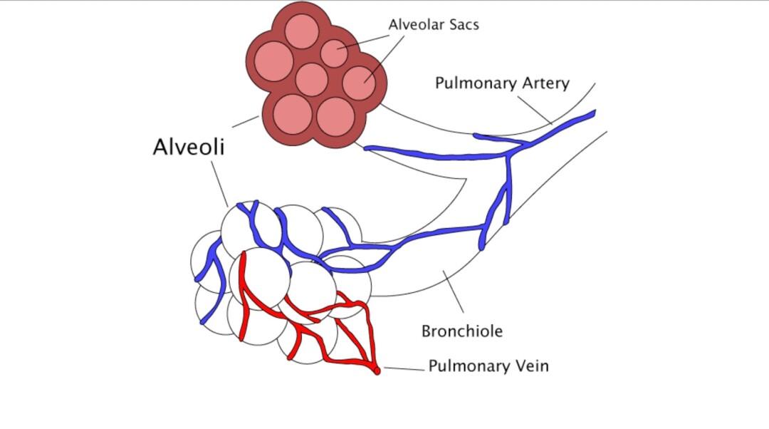 Covid-19, cellule alveolari di tipo II e surfactant  (articolo tradotto in italiano pubblicato sul Journal of Medical – Clinical Research & Reviews)